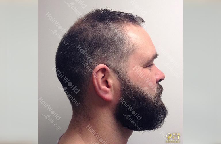 Ervaring Hairworld Istanbu7