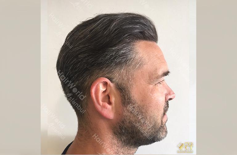 Ervaring Hairworld Istanbu8