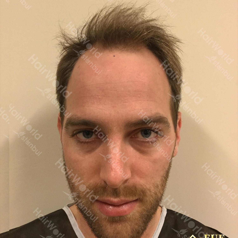 Ervaring HairworldIstanbul 1 4
