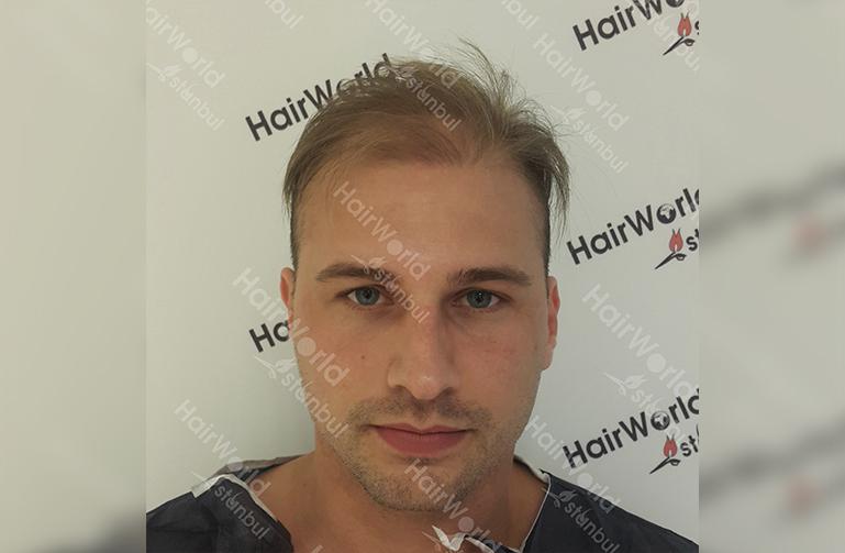 Ervaring HairworldIstanbul 1 6