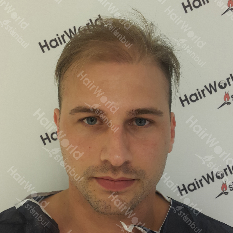Ervaring HairworldIstanbul 1 7