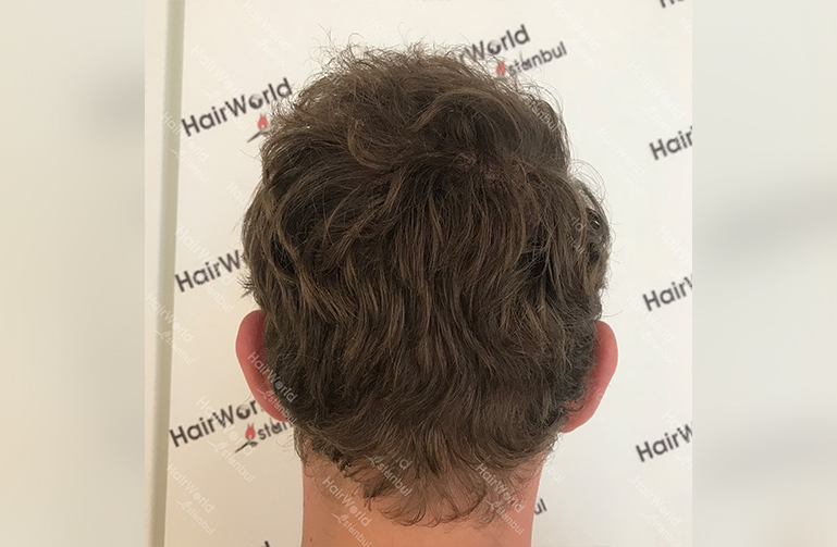 Ervaring HairworldIstanbul 10 3