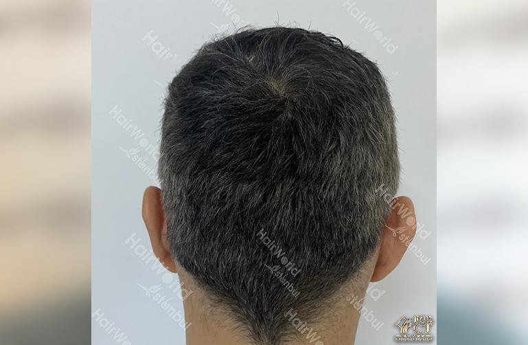 Ervaring HairworldIstanbul 10 5