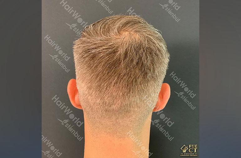 Ervaring HairworldIstanbul 10 6