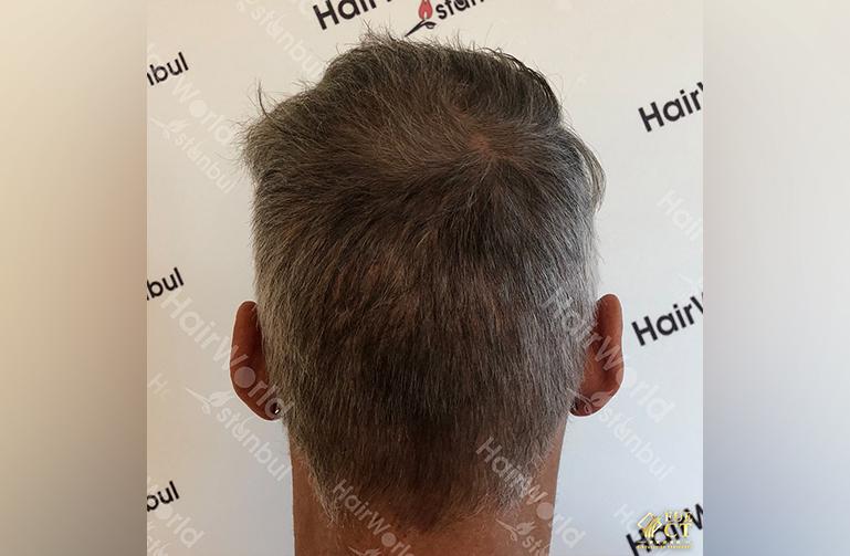 Ervaring HairworldIstanbul 10 7