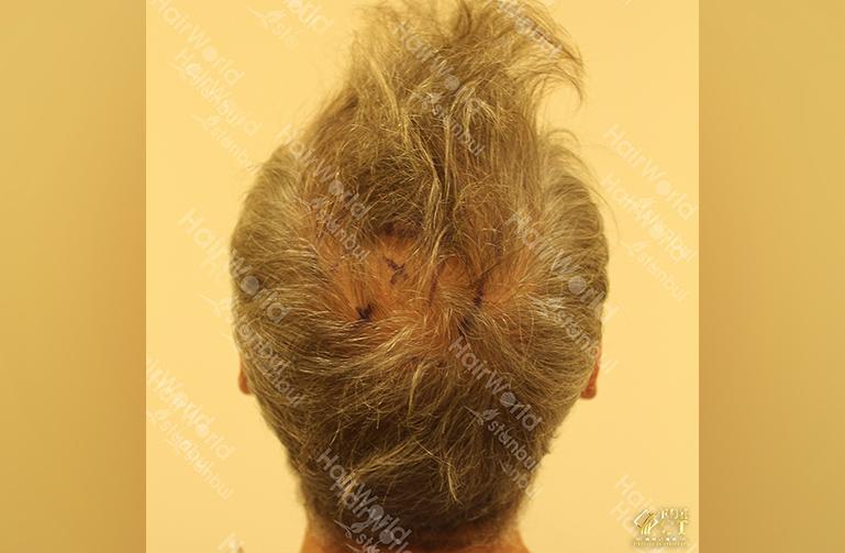 Ervaring HairworldIstanbul 11 4