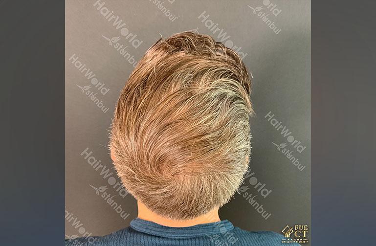 Ervaring HairworldIstanbul 12 4
