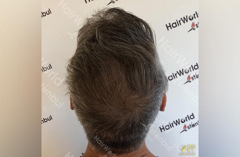 Ervaring HairworldIstanbul 12 5