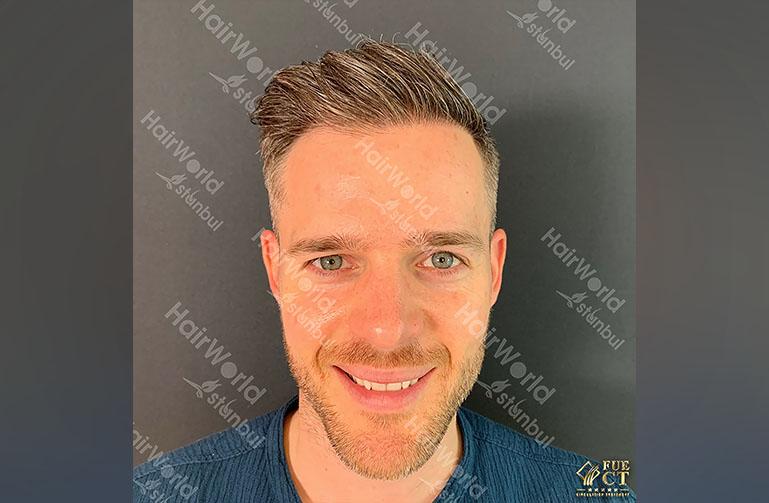 Ervaring HairworldIstanbul 2 10