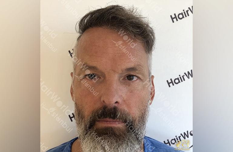 Ervaring HairworldIstanbul 2 11