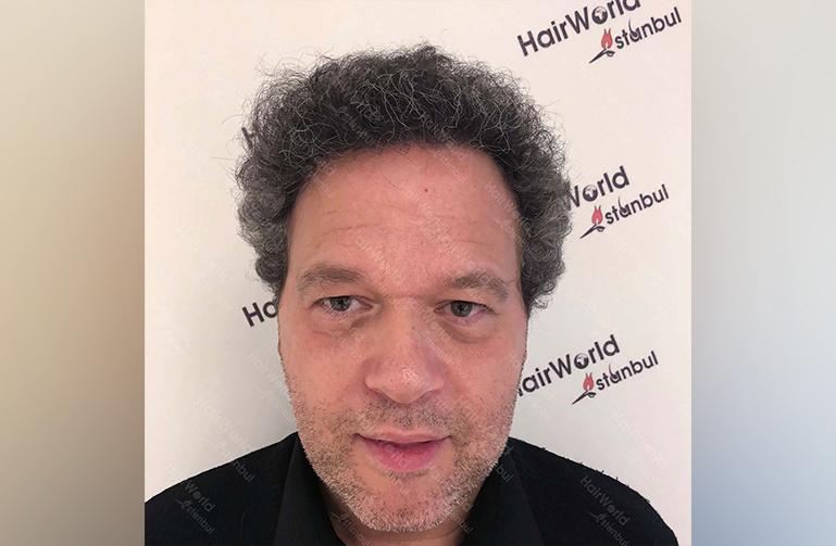 Ervaring HairworldIstanbul 2 12