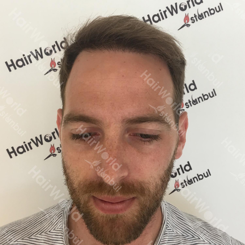 Ervaring HairworldIstanbul 2 4