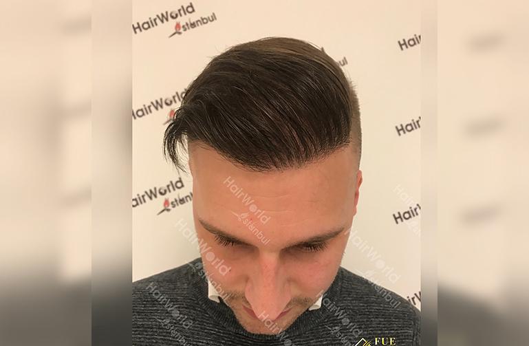 Ervaring HairworldIstanbul 2 5
