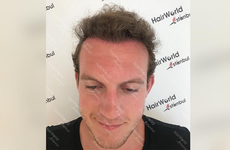 Ervaring HairworldIstanbul 2 6