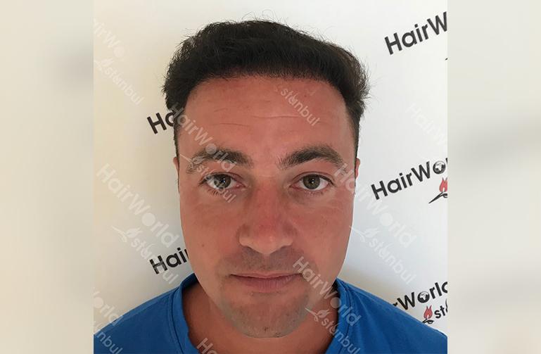 Ervaring HairworldIstanbul 2 7
