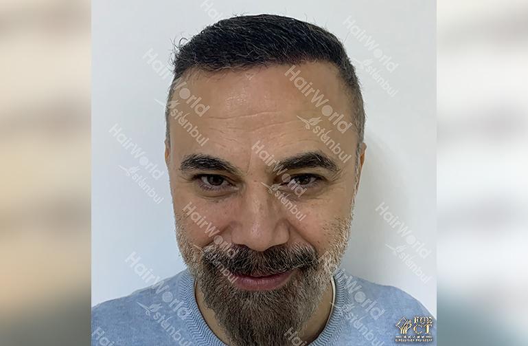 Ervaring HairworldIstanbul 2 9