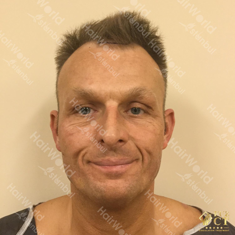 Ervaring HairworldIstanbul 22