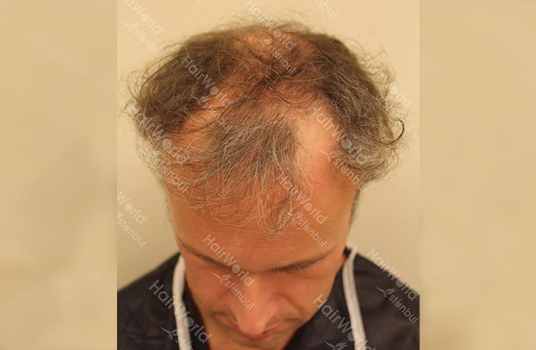 Ervaring HairworldIstanbul 3 1
