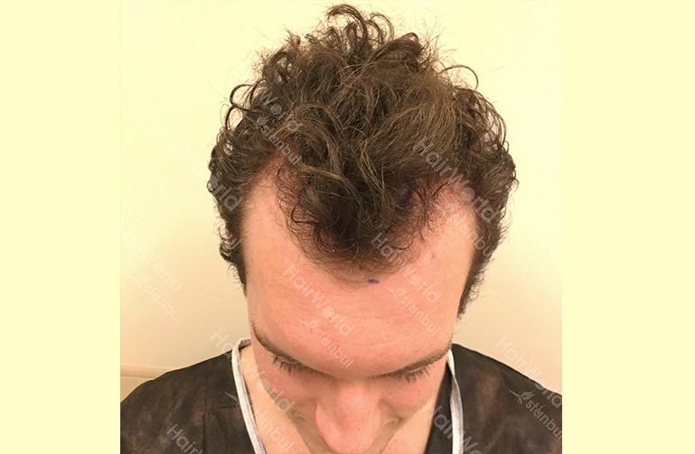 Ervaring HairworldIstanbul 3 3