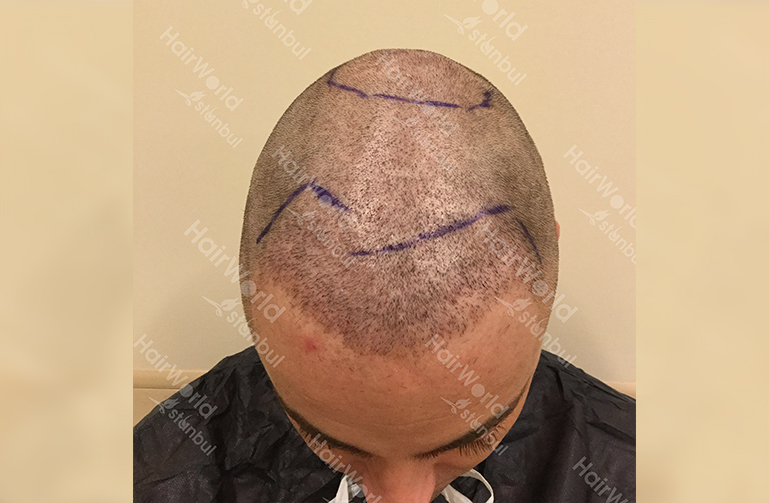 Ervaring HairworldIstanbul 3 4