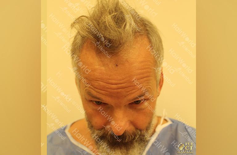 Ervaring HairworldIstanbul 3 8