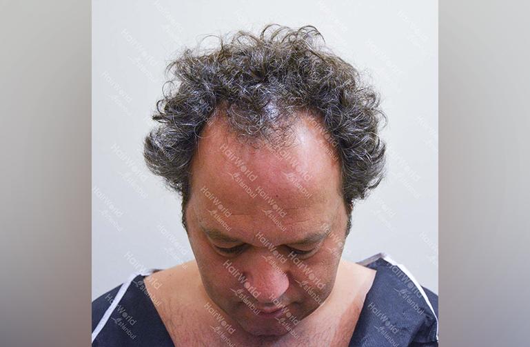 Ervaring HairworldIstanbul 3 9