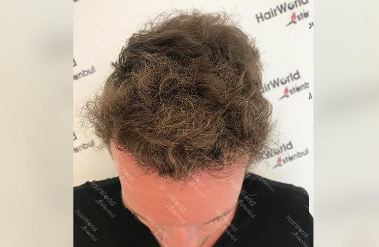Ervaring HairworldIstanbul 4 3