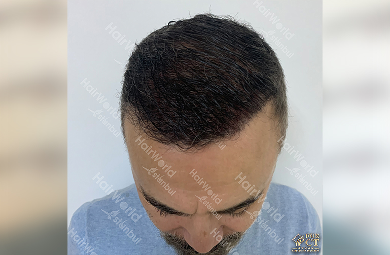 Ervaring HairworldIstanbul 4 6