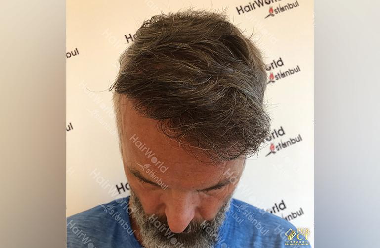 Ervaring HairworldIstanbul 4 8