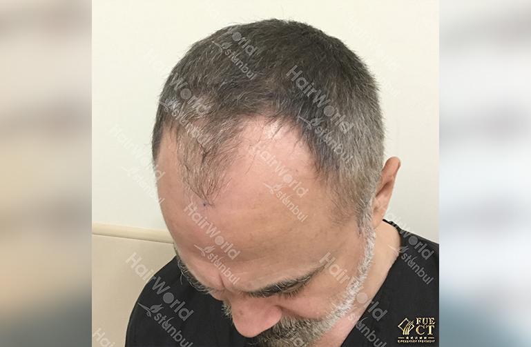 Ervaring HairworldIstanbul 5 6