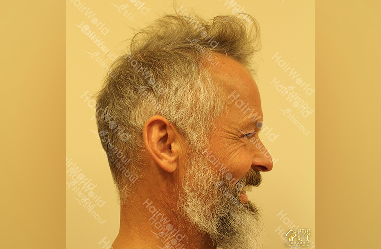 Ervaring HairworldIstanbul 5 8
