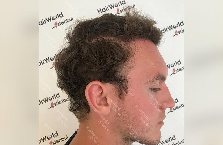 Ervaring HairworldIstanbul 6 3