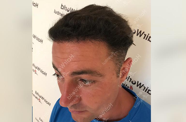 Ervaring HairworldIstanbul 6 4