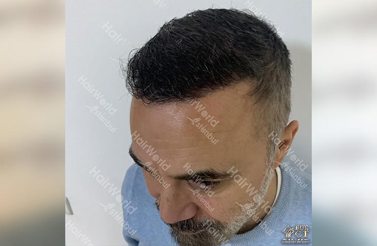 Ervaring HairworldIstanbul 6 6