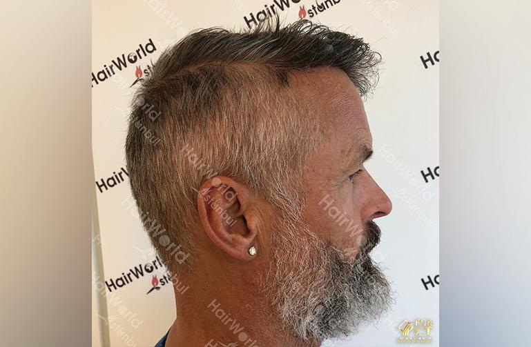 Ervaring HairworldIstanbul 6 8