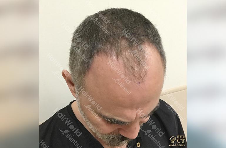 Ervaring HairworldIstanbul 7 5