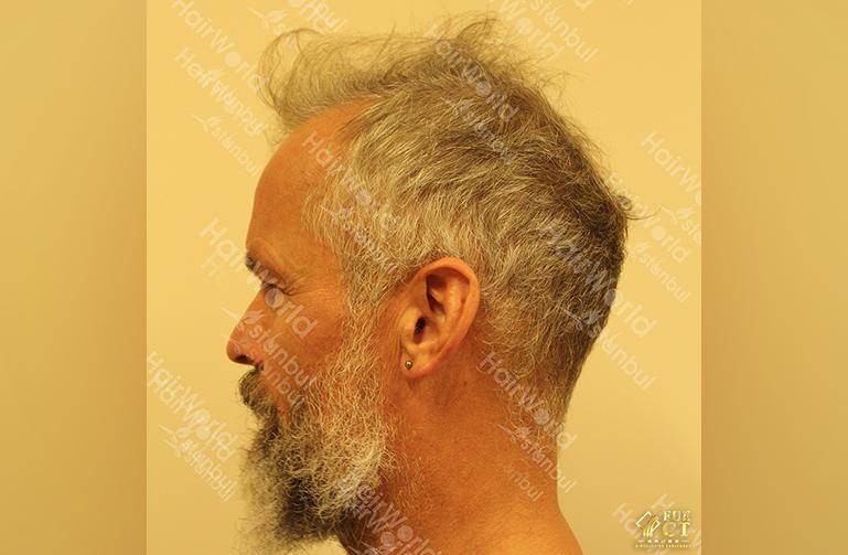Ervaring HairworldIstanbul 7 7