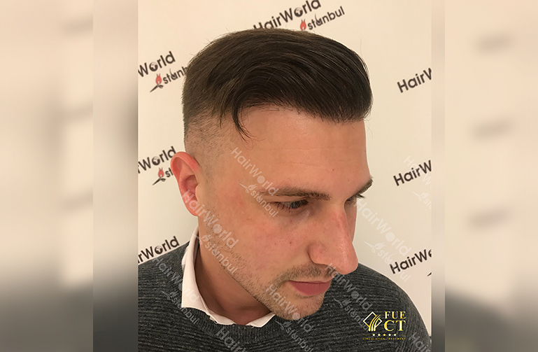 Ervaring HairworldIstanbul 8 2