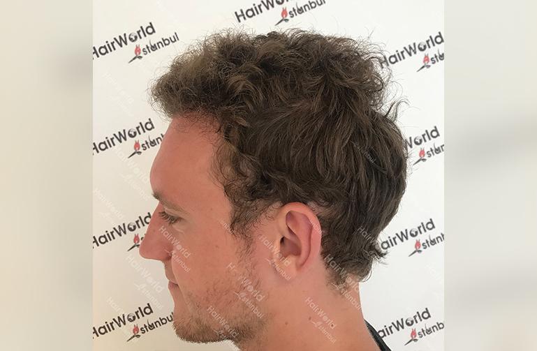 Ervaring HairworldIstanbul 8 3