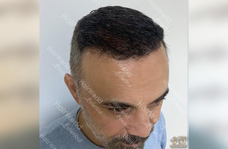 Ervaring HairworldIstanbul 8 5