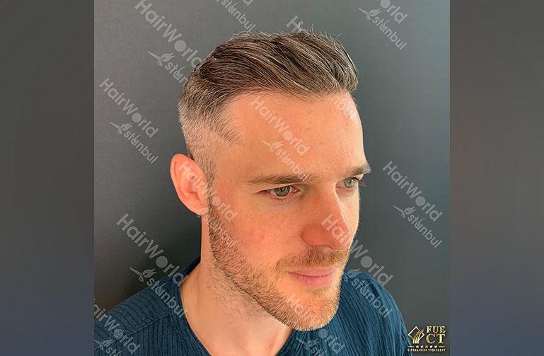 Ervaring HairworldIstanbul 8 6