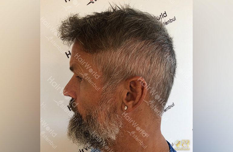 Ervaring HairworldIstanbul 8 7