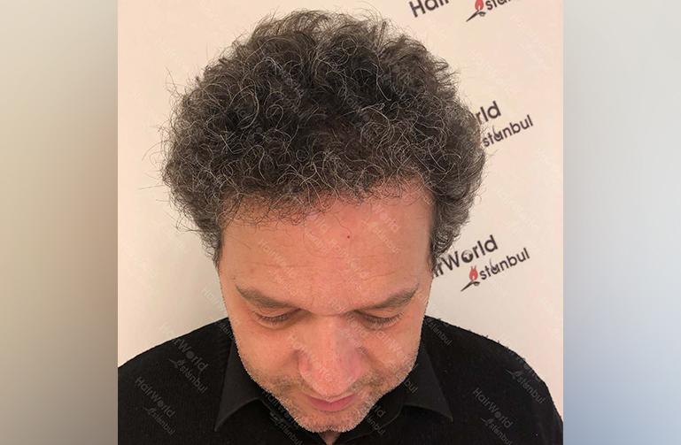 Ervaring HairworldIstanbul 8 copy