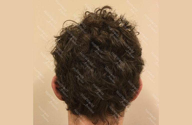 Ervaring HairworldIstanbul 9 3