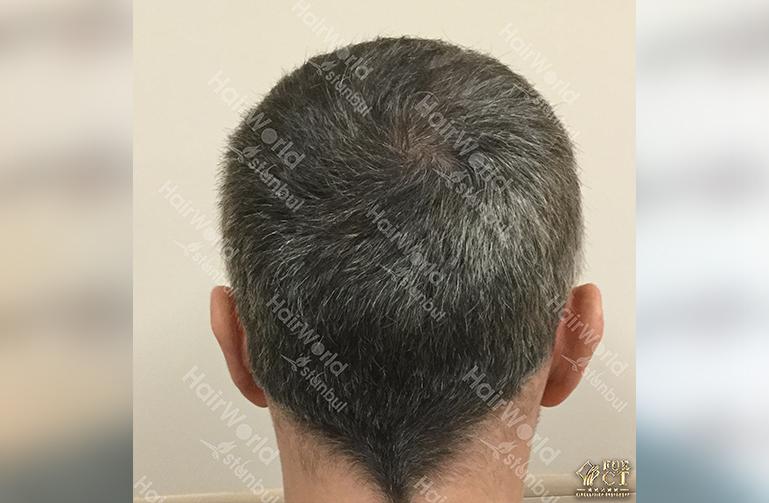 Ervaring HairworldIstanbul 9 5