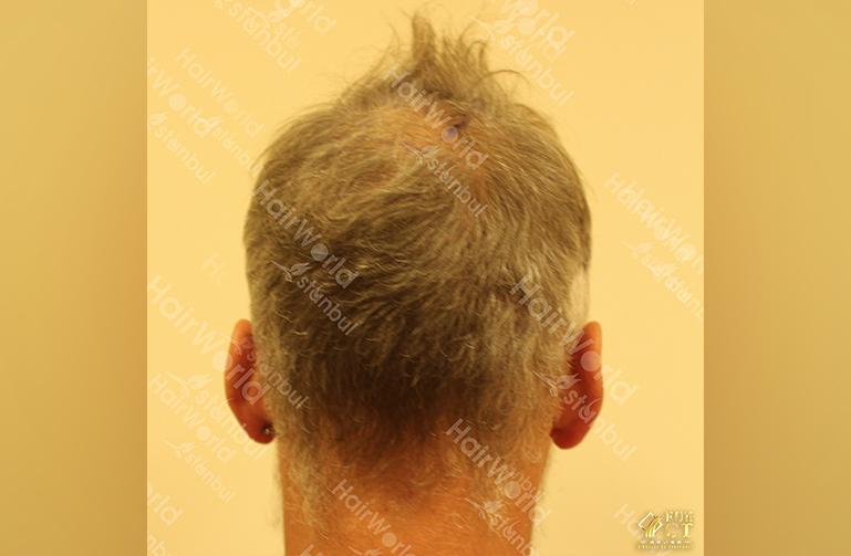 Ervaring HairworldIstanbul 9 7