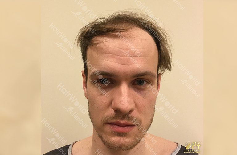 Ervaring HairworldIstanbul slide1 2