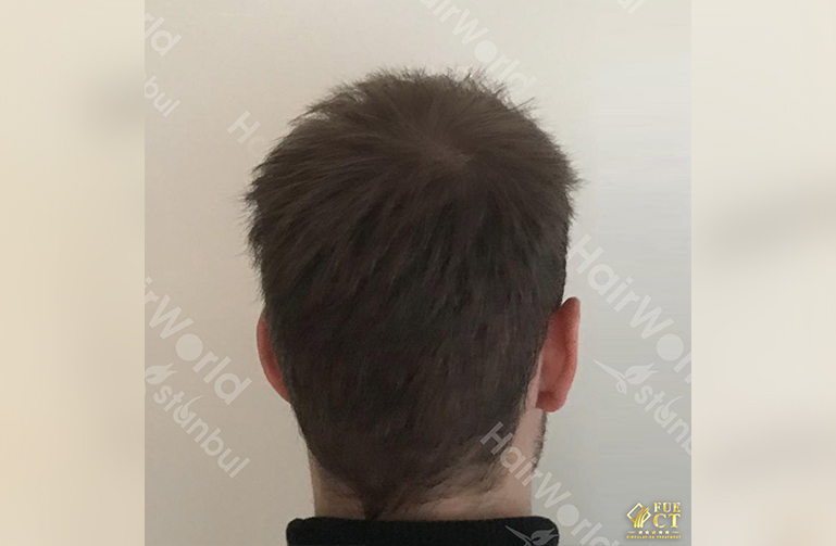 Ervaring HairworldIstanbul slide10 2