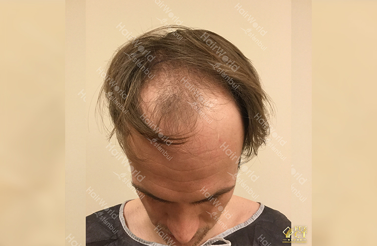 Ervaring HairworldIstanbul slide3 2