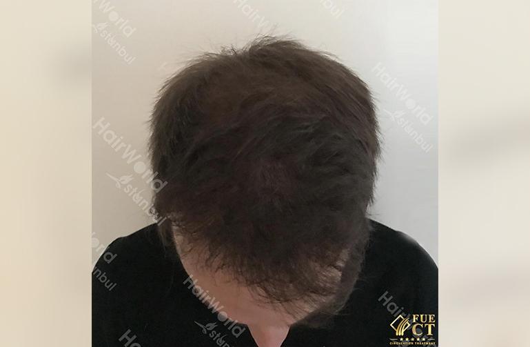 Ervaring HairworldIstanbul slide4 2
